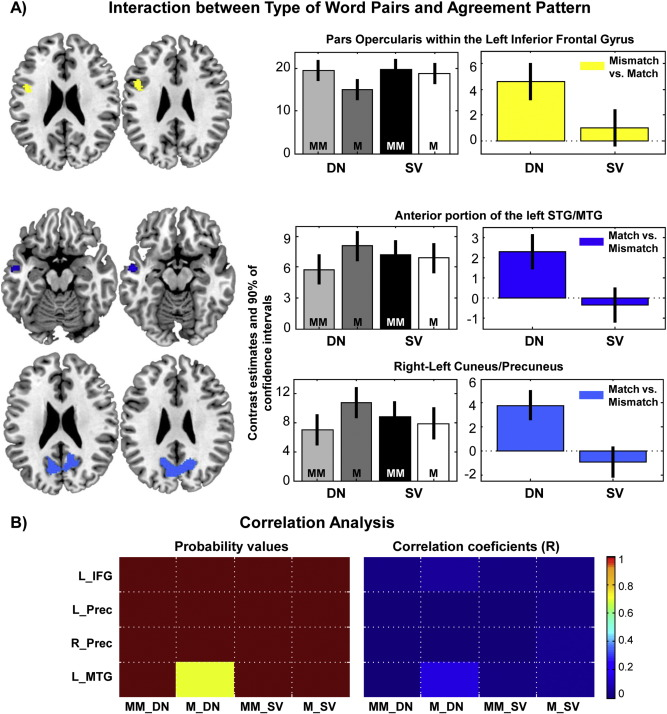 Verbal And Nominal Agreement An Fmri Study Sciencedirect