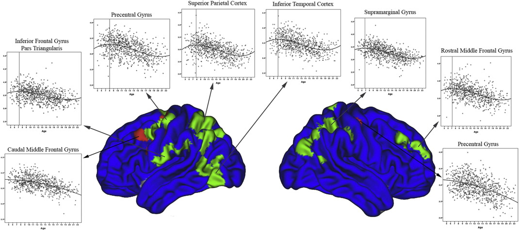Trajectories of cortical thickness maturation in normal brain ...