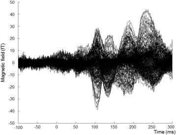 Early visual cortical responses produced by checkerboard pattern