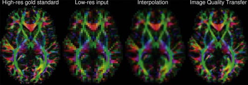 Image quality transfer and applications in diffusion MRI