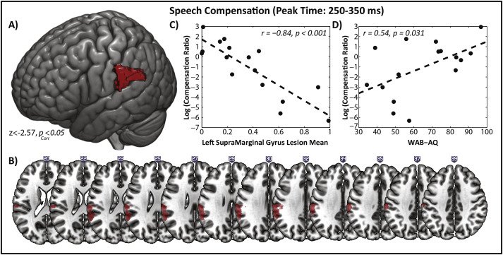 Sensorimotor impairment of speech auditory feedback