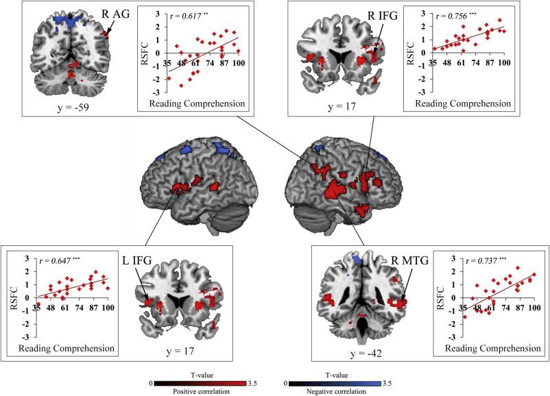 Intrinsic insula network engagement underlying children's reading ...