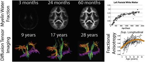 Common Cerebral White Matter >> The Development Of Brain White Matter Microstructure Sciencedirect