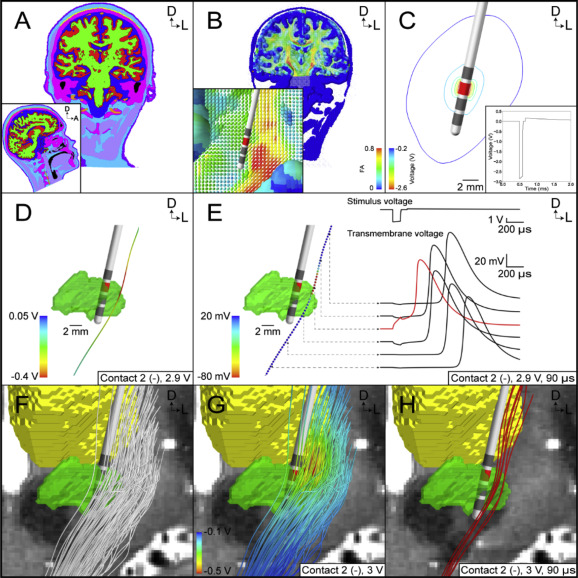 Quantifying axonal responses in patient-specific models of