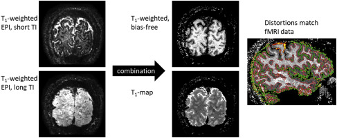 Distortion-matched T1 maps and unbiased T1-weighted images ...