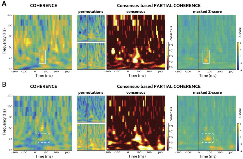 Characterization of network structure in stereoEEG data