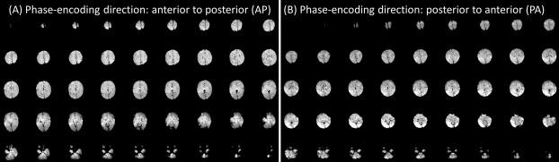 Resting-state functional MRI studies on infant brains: A