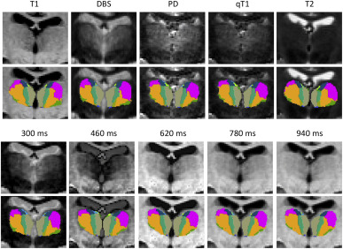 A probabilistic atlas of the human thalamic nuclei combining