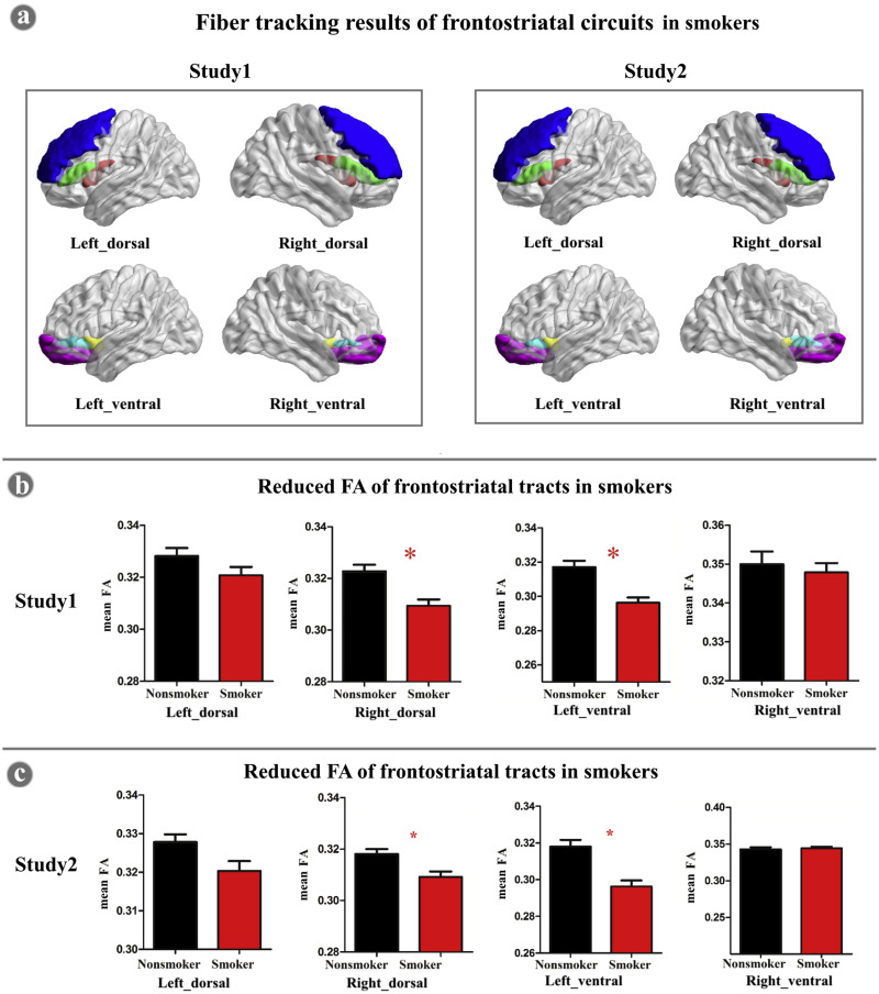 Abnormal frontostriatal tracts in young male tobacco smokers