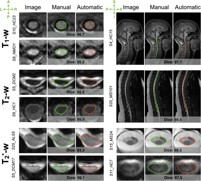 Automatic segmentation of the spinal cord and intramedullary