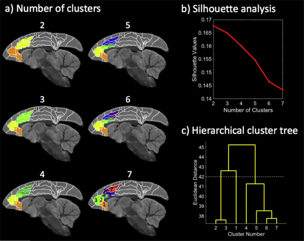 Intrinsic functional clustering of anterior cingulate cortex