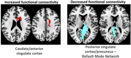 Brain Imaging Reveals Adhd As >> Functional Connectivity Changes Associated With Fmri Neurofeedback