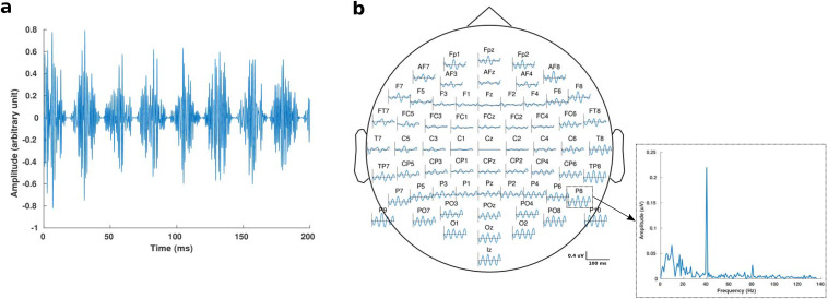 Contributions of non-primary cortical sources to auditory temporal