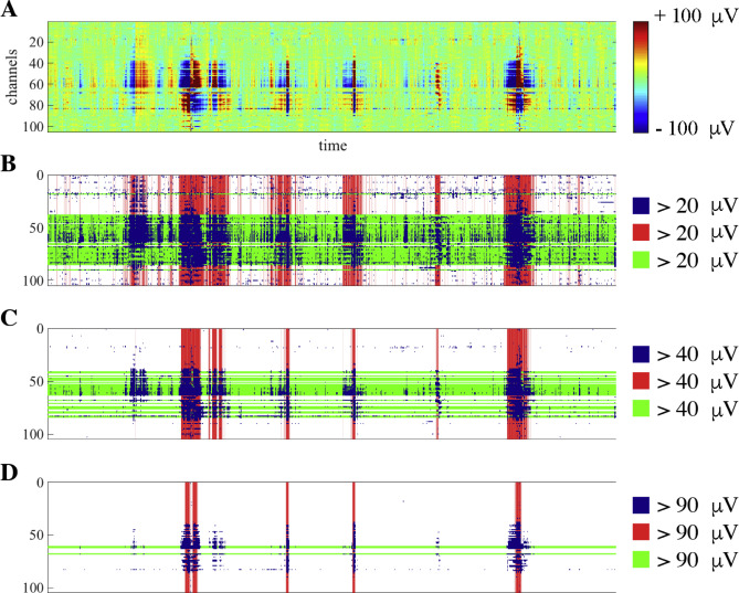 Automagic: Standardized preprocessing of big EEG data - ScienceDirect