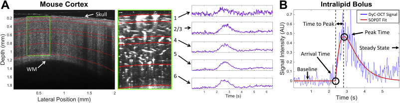 Dynamic Contrast Optical Coherence Tomography reveals laminar microvascular hemodynamics in the mouse neocortex in vivo