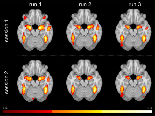 Stability of amygdala fMRI activation over runs and sessions