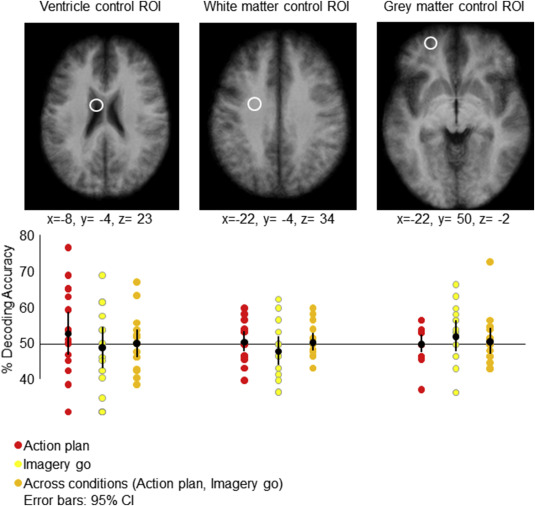 Decoding Motor Imagery And Action Planning In The Early Visual Cortex Overlapping But Distinct Neural Mechanisms Sciencedirect