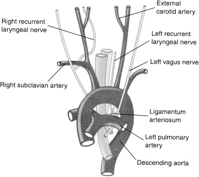 Identification And Monitoring Of The Recurrent Laryngeal Nerve
