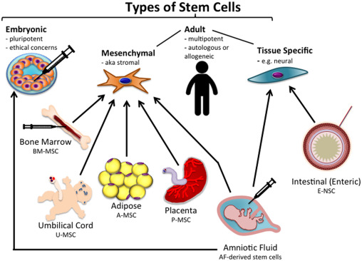 Stem cell therapy in necrotizing enterocolitis: Current