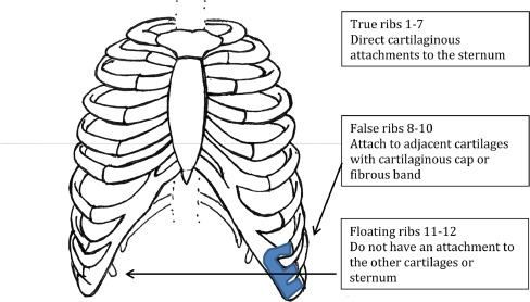 Slipping Rib Syndrome A Review Of Evaluation Diagnosis And