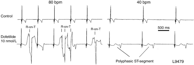 The isolated rabbit heart and purkinje fibers as models for illustration of typical r on t extrasystoles elicited during the application of 10 nmoll dofetilide on a rabbit heart l9479 paced at 80 bpm ccuart Images