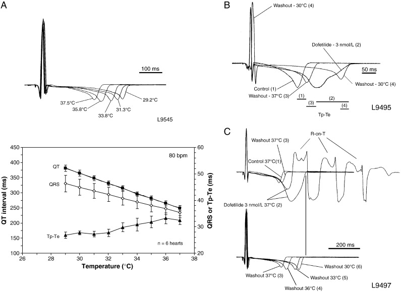 The isolated rabbit heart and purkinje fibers as models for tpte durations and the incidence of arrhythmias pacing rate 80 bpm a upper panel representative change in the ecg waveform rabbit l9545 when ccuart Images