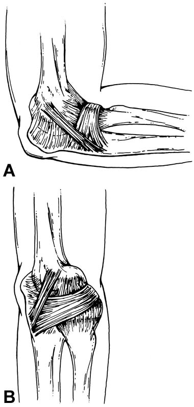 Subluxation of the annular ligament as a cause of elbow clicking ...