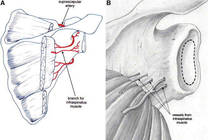 Arterial supply of the glenoid: An anatomic study - ScienceDirect