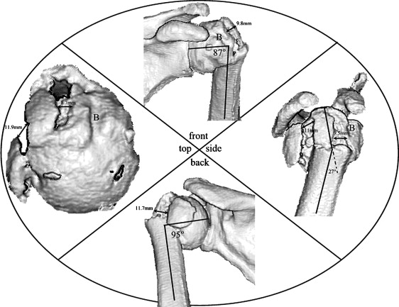 The Three Dimensional Anatomy Of Proximal Humeral Fractures