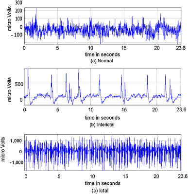 Wavelet-based EEG processing for computer-aided seizure