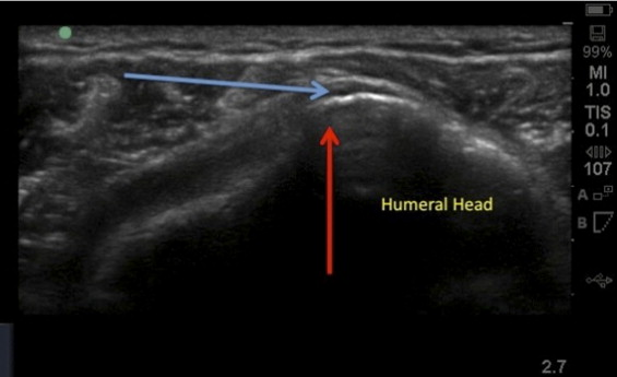 Injection Therapies in the Management of Shoulder Injuries