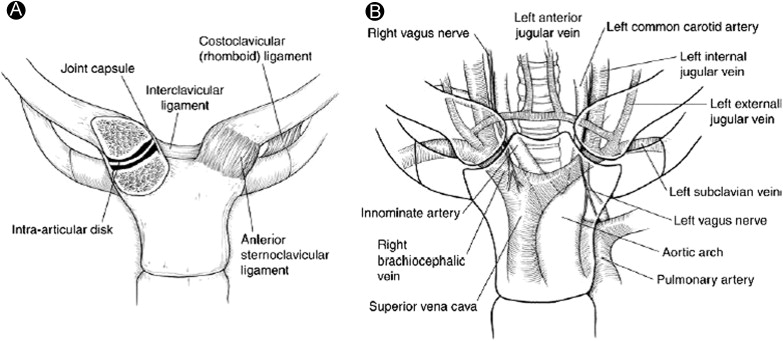 Sternoclavicular Joint Arthritis: Arthroscopic and Open Resection ...