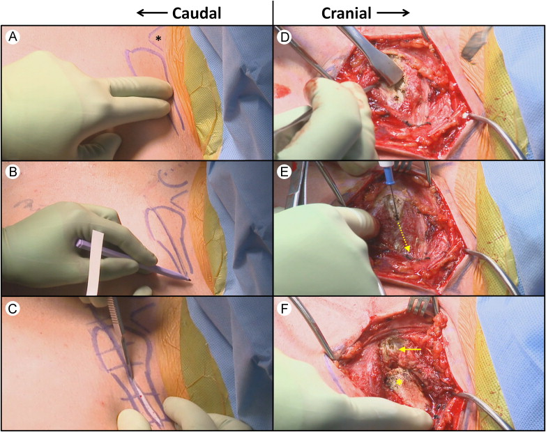 Figure-of-Eight Tendon Graft Reconstruction for Sternoclavicular ...