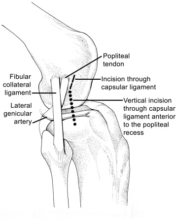 Posterolateral Reconstruction of the Knee: Capsular Procedures ...