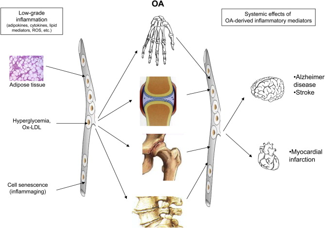 Osteoarthritis As An Inflammatory Disease Osteoarthritis Is Not