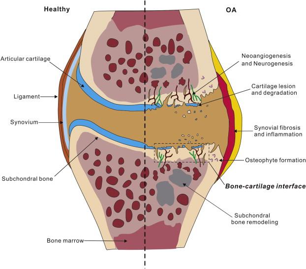 bone cartilage interface crosstalk in osteoarthritis potential