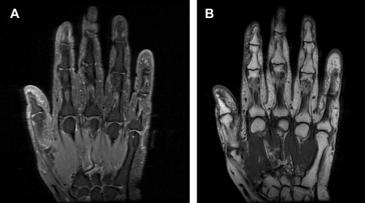 OARSI Clinical Trials Recommendations: Hand imaging in clinical