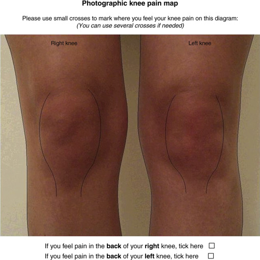 Location Of Knee Pain In Medial Knee Osteoarthritis Patterns And