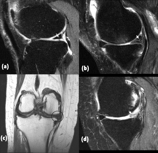 The relationship between meniscal pathology and osteoarthritis