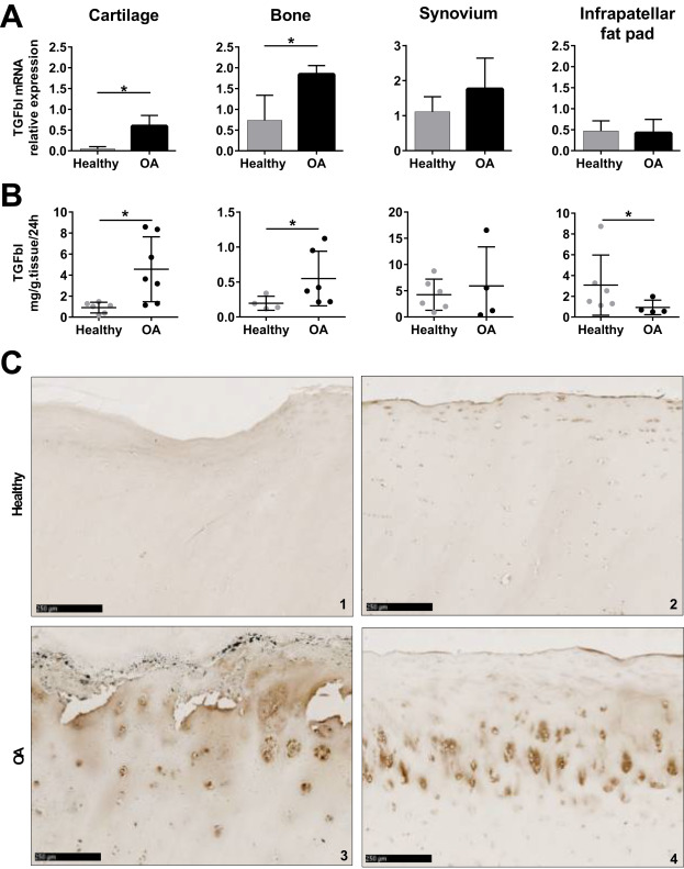 TGFβi is involved in the chondrogenic differentiation of
