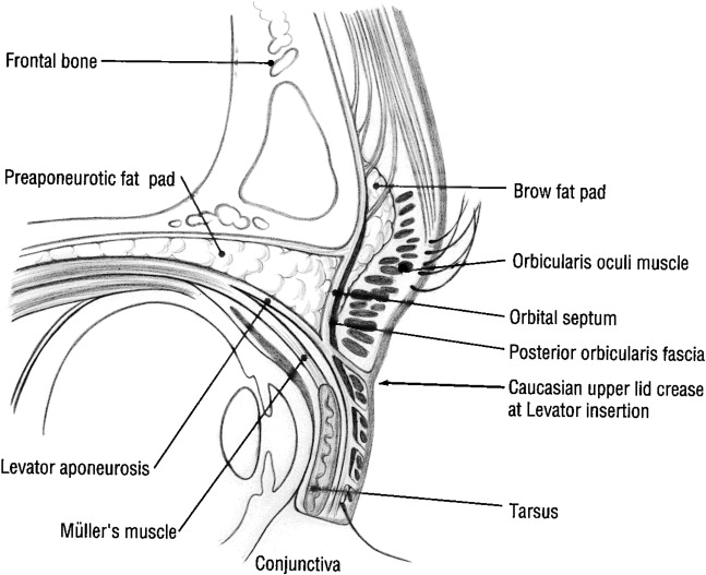 Anatomy Of The Asian Eyelid Sciencedirect
