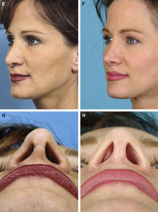 New Concepts in Nasal Tip Contouring - ScienceDirect