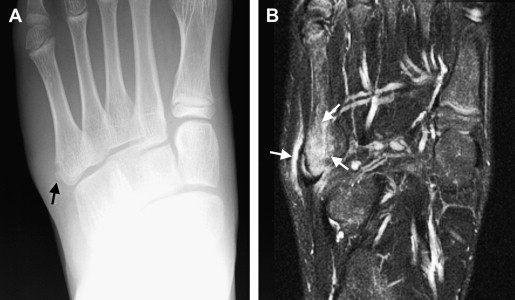 Imaging Evaluation of Chronic Ankle and Hindfoot Pain in Athletes ...
