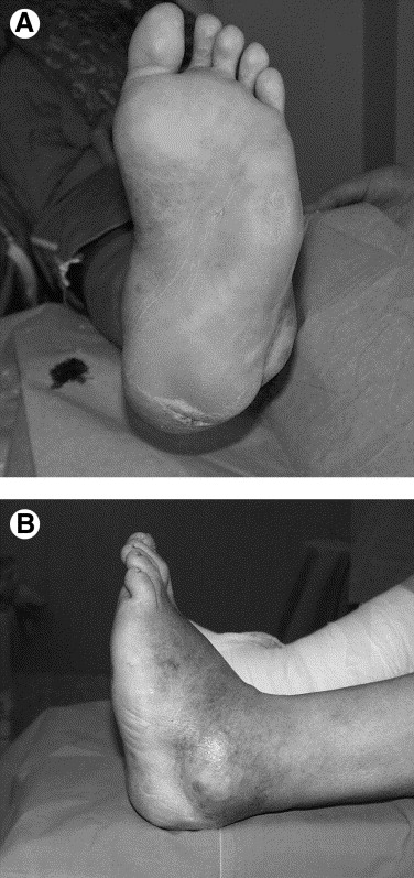Intramedullary Compressive Nail Fixation for the Treatment of Severe ...