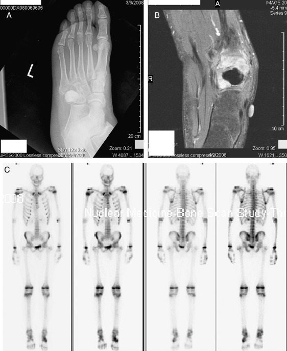 Chondroblastic Osteosarcoma of the Cuboid: A Literature Review and