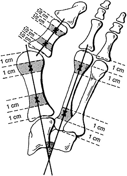 radiographic angles in hallux valgus parison between manual and Working Safely with Gamma Radiography download full size image