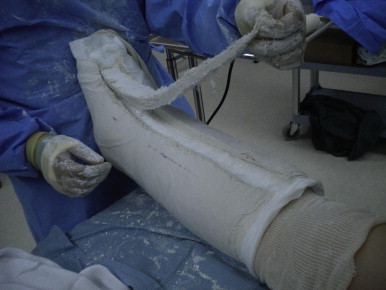 Univalve Split Plaster Cast for Postoperative Immobilization