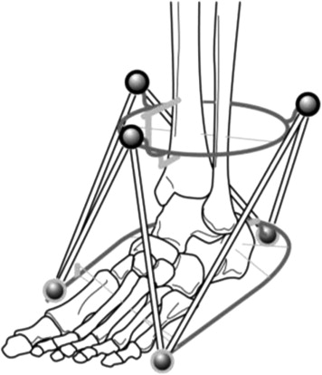 foot deformity correction with hexapod external fixator the ortho External Fixator Knee download full size image