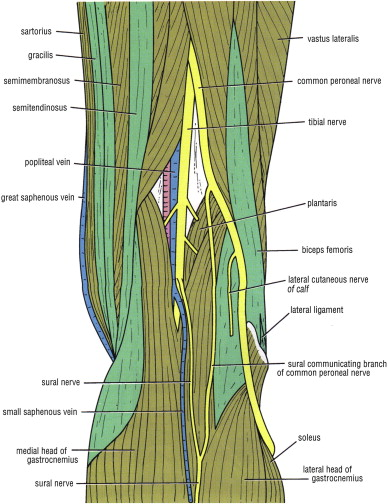 Techniques Of Popliteal Nerve Regional Anesthesia Sciencedirect