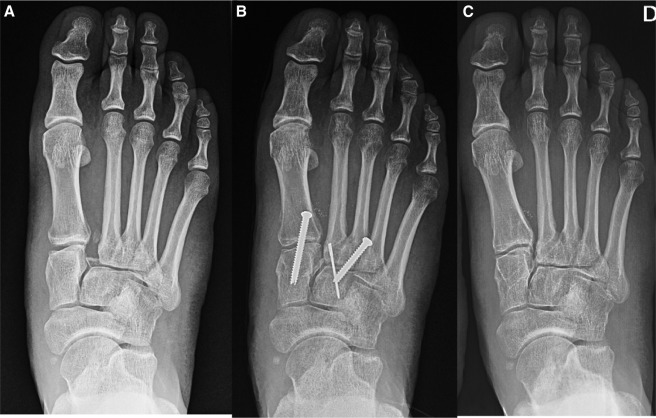 Lisfranc Joint Ligament Complex Reconstruction A Promising Solution